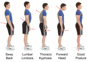 Posture Challenge Issued by Personal Trainer Greg Jasnikowski